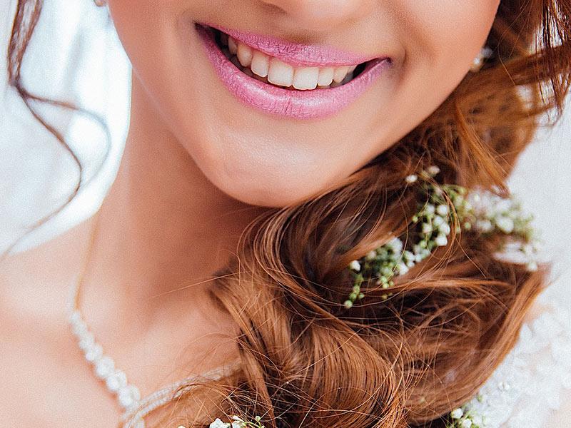 Per il benessere della bocca e per un sorriso smagliante nel tuo grande giorno scopri i Pacchetti Smile di Dentalceva